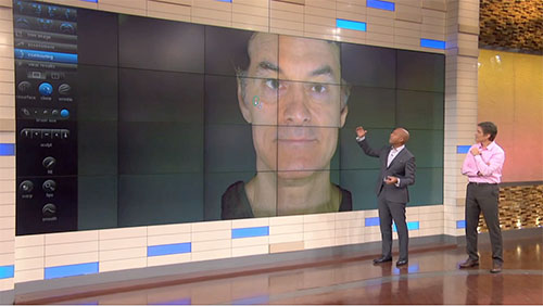 VECTRA used on Dr. Oz show