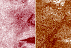 Quantify Subsurface Skin Conditions