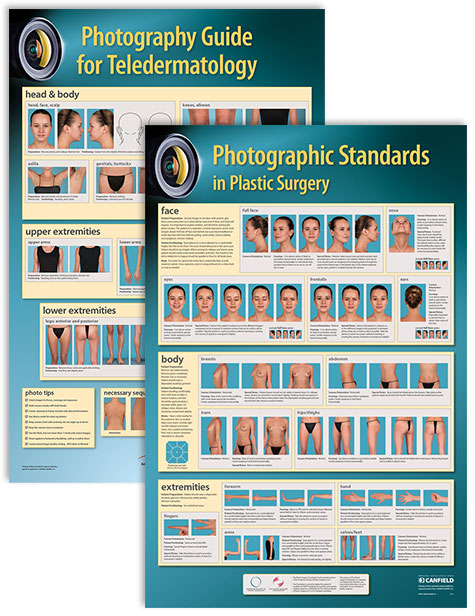 Clinical Photography Posters