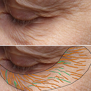 Wrinkles and Fine Line Detection