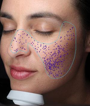 VISIA Skin Analysis | Canfield Scientific