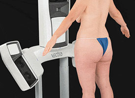 VECTRA® Now with 360° Body Imaging