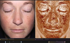 Medscape Stresses Importance of Pre-Treatment Complexion Analysis Citing Canfield's VISIA and Reveal